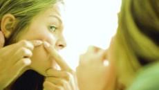 Nu este indicat să vă rezolvaţi singuri problema acneei