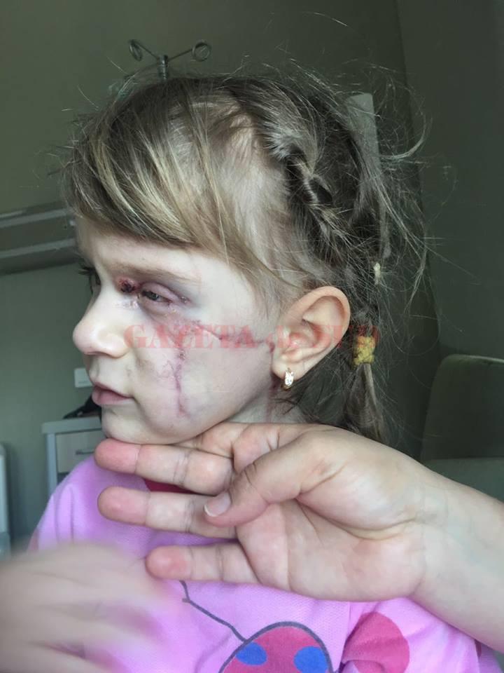 Anays, copila de numai trei ani diagnosticată cu cancer