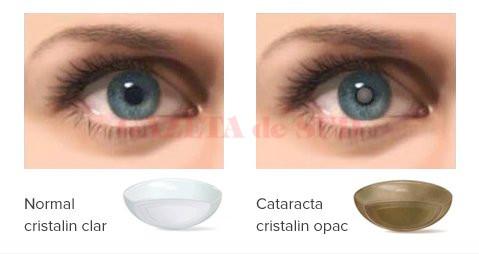cataracta2