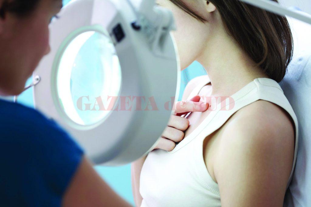 cancer la femei jos virusi gratuit