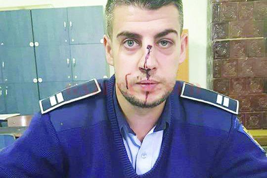 Sindicatul Polițiștilor Dolj a făcut publică, joi,  o fotografie a agentului lovit de tânărul din Balș