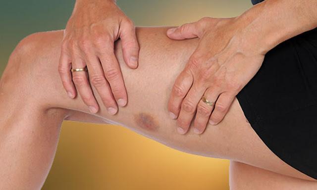 Simptome care anunță leucemia. Mare atenţie la aceste semne!