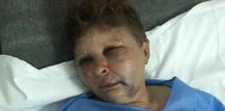 Femeia de 49 ani a ajuns la spital cu contuzii la nivelul feței