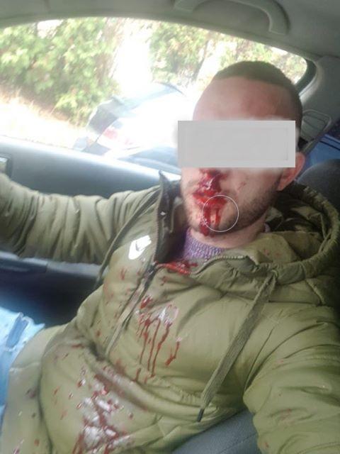 Tânărul de 27 de ani ar fi fost bătut la intrarea unui centru comercial.
