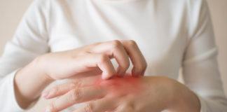 Ce sunt eczemele şi cum le tratăm