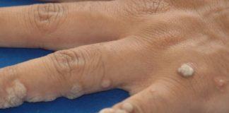 Negii sunt mici excrescenţe benigne (noncanceroase) apărute la suprafaţa pielii