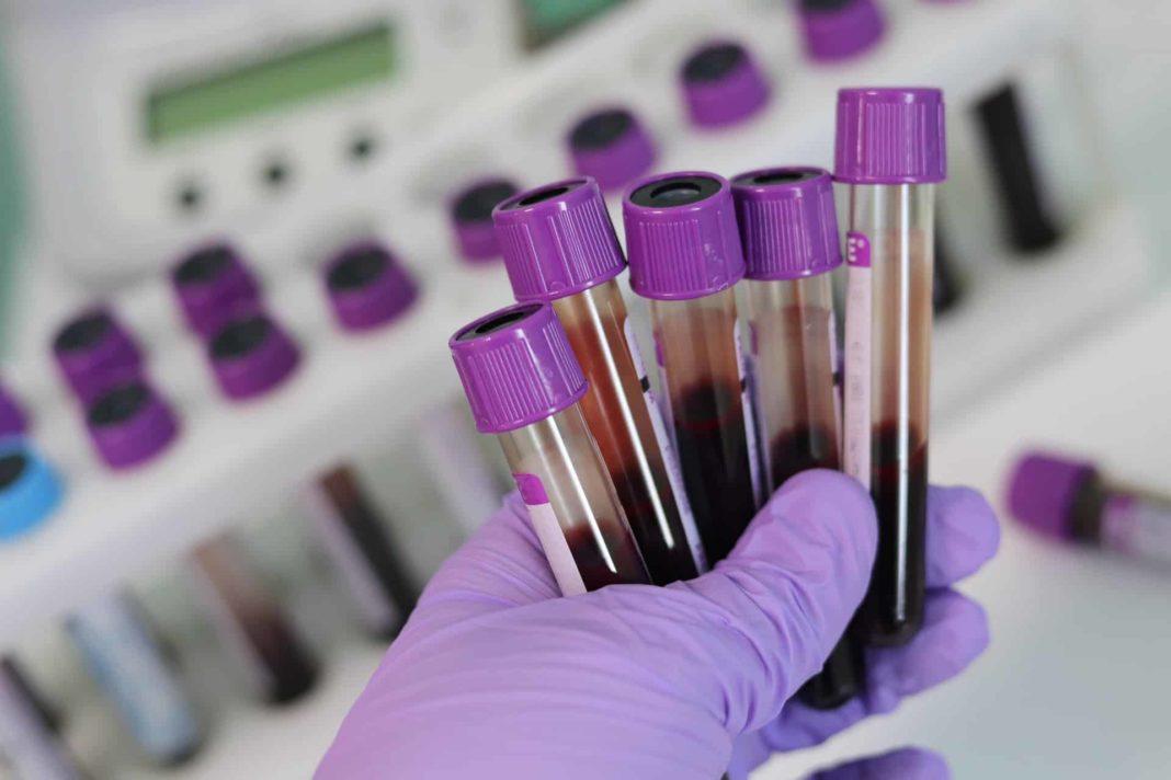Clinicile și laboratoarele private din România au început, în această perioadă, să facă teste contra cost pentru depistarea anticorpilor COVID-19