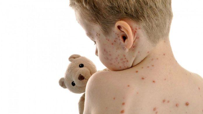 53 de cazuri de varicelă întregistrate în Gorj