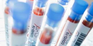 Grupul de Comunicare Strategică a anunţat că încă cinci persoane infectate cu noul coronavirus au murit