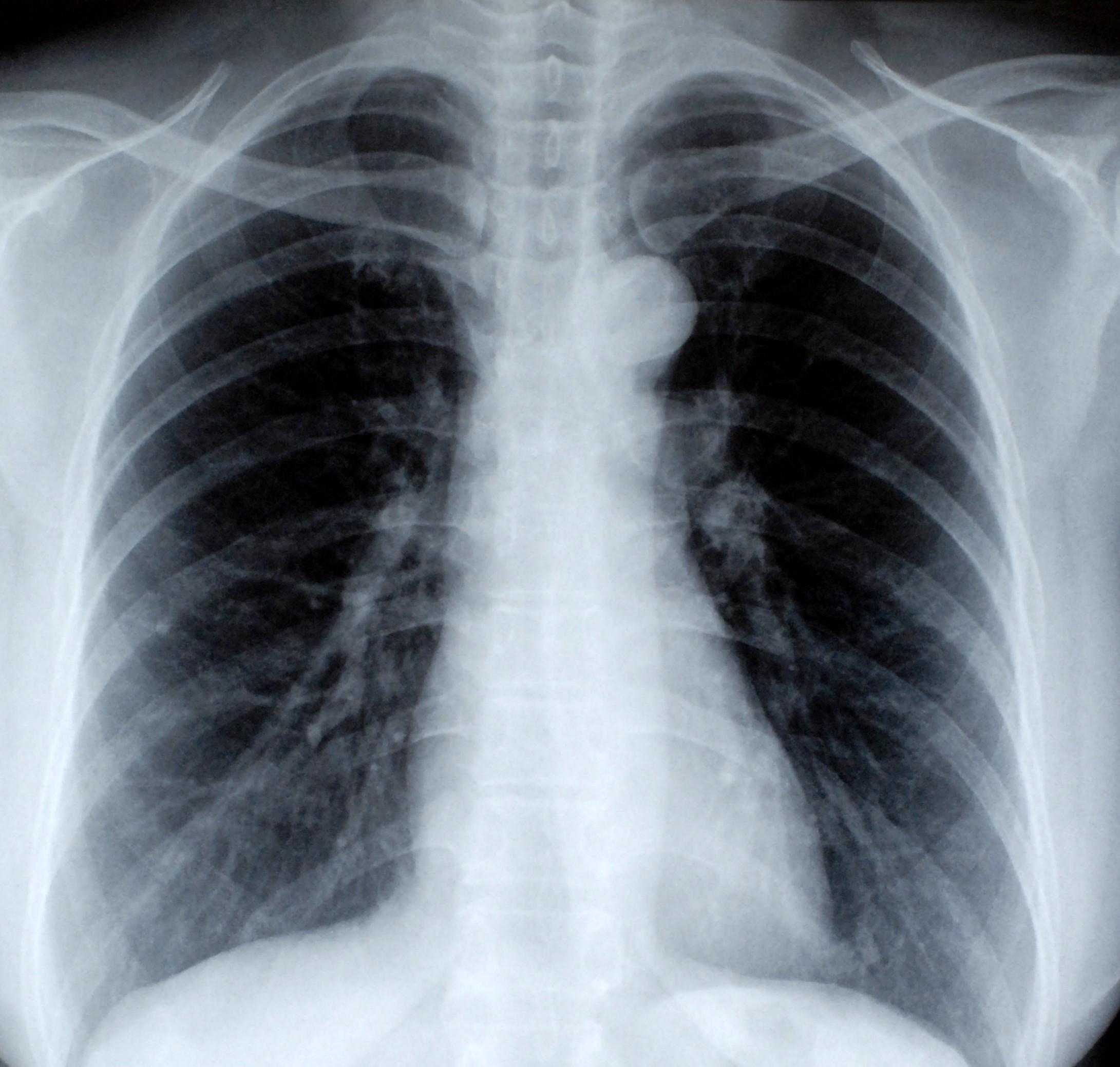 Radiografia toracică normală și patologică   Proceduri medicale