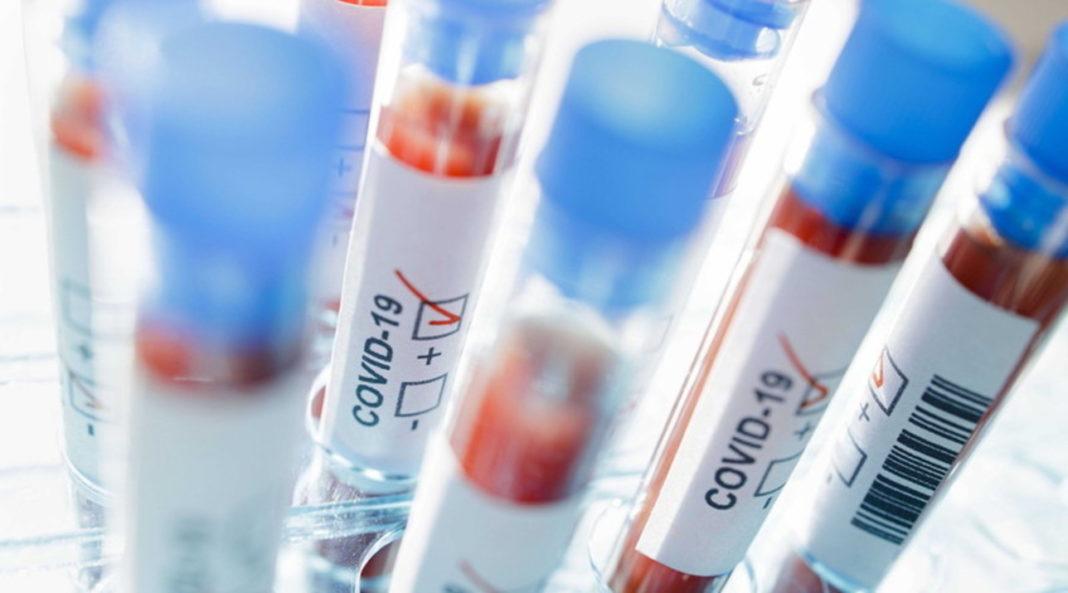 De la ultima informare de presă, s-au înregistrat cinci cazuri noi de infecție cu SARS-CoV-2 în județul Vâlcea