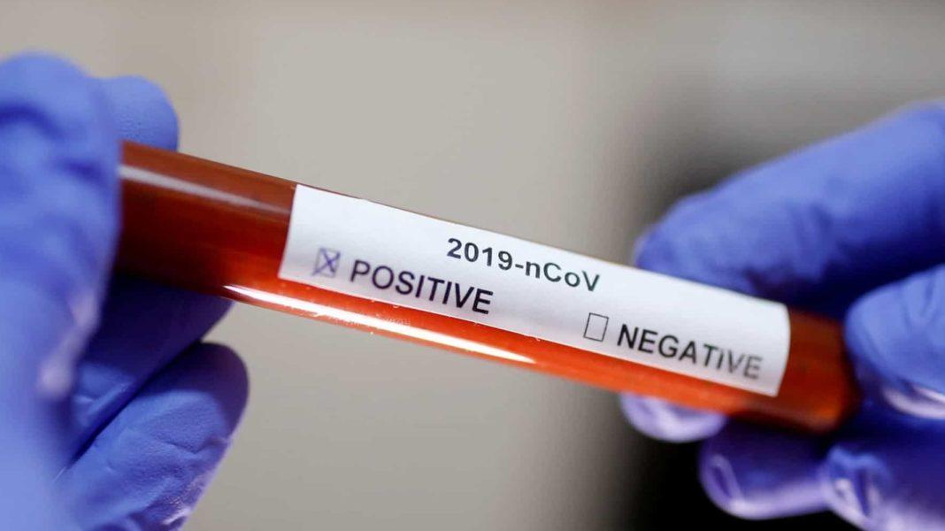 Au fost înregistrate 808 cazuri noi de persoane infectate cu COVID-19, acestea fiind cazuri care nu au mai avut anterior un test pozitiv