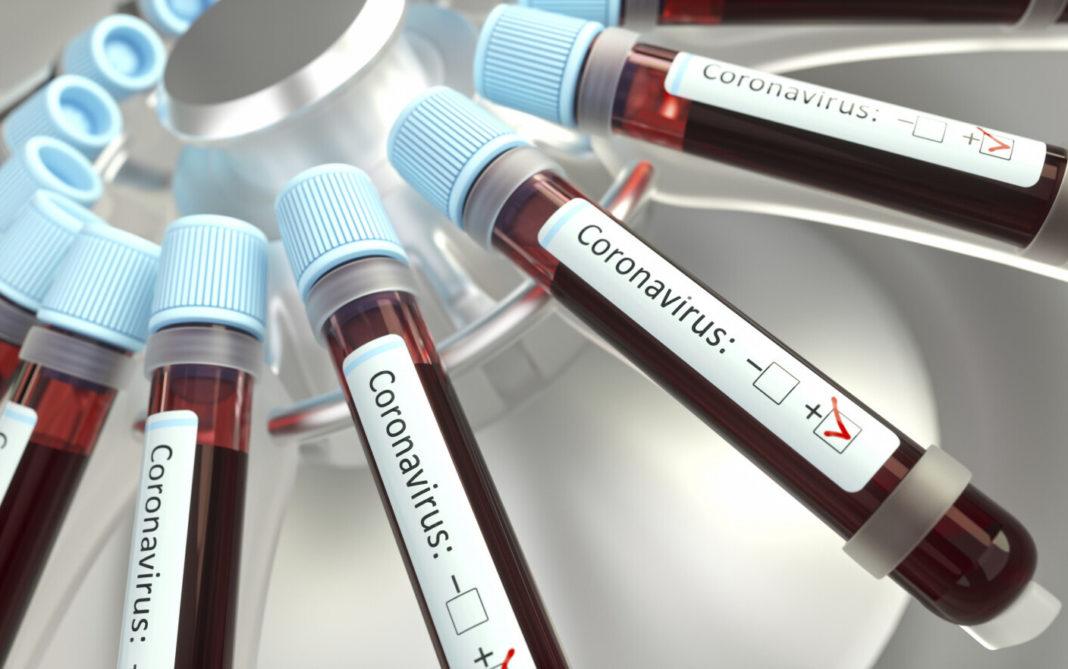OMS anunță un număr record de îmbolnăviri cu COVID-19 la nivel mondial