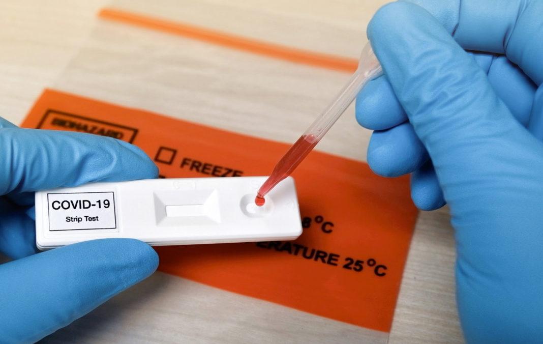23.340 de teste au fost efectuate în baza definiției de caz și a protocolului medical și 12.127 la cerere