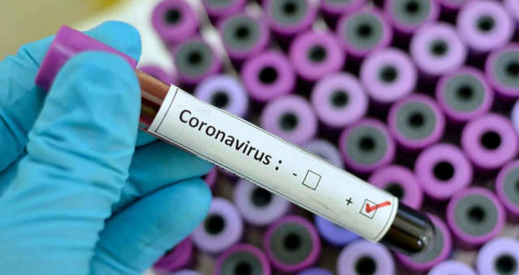 Au fost efectuate 12.941 de teste RT-PCR (6.933 în baza definiției de caz și 6.008 la cerere) și 4.550 de teste rapide antigenice