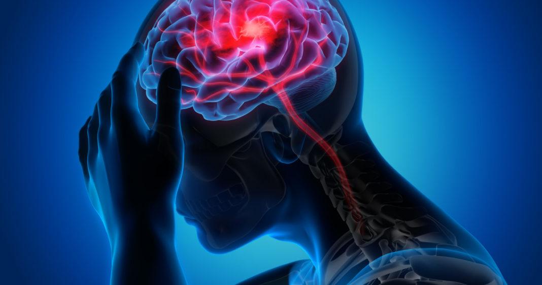 STUDIU: Supraviețuitorii Covid pot suferi pierderi de substanță cenușie